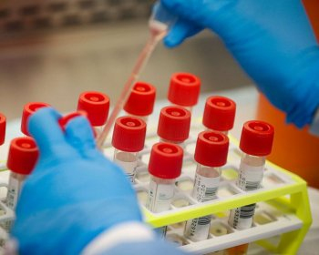 American Family Care Offering COVID-19 Antibody Testing
